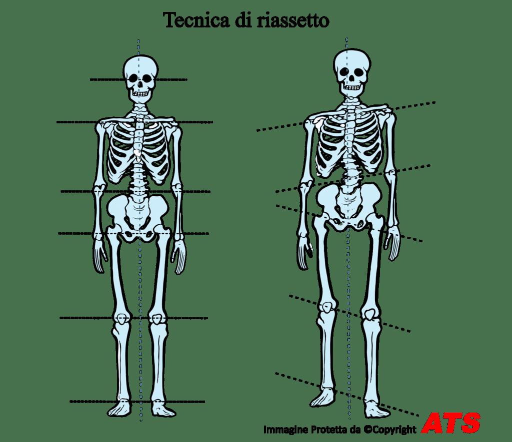 Riassetto-Posturale